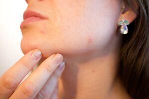 acne skin treatment